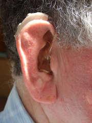 Remboursements des audioprothèses : les professionnels mécontents